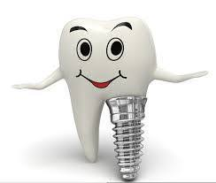 The future of Oral Implantology